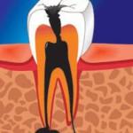 Кариес увеличивает риск сердечно-сосудистых заболеваний.