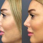 Пластика носа / Ринопластика